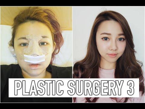Dibdib surgery sa Japan