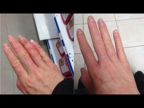 Semi di cumino neri in cura di eczema