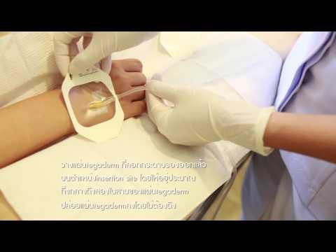 รักษาเส้นเลือดขอดของอาการเกี่ยวกับกระดูกเชิงกราน