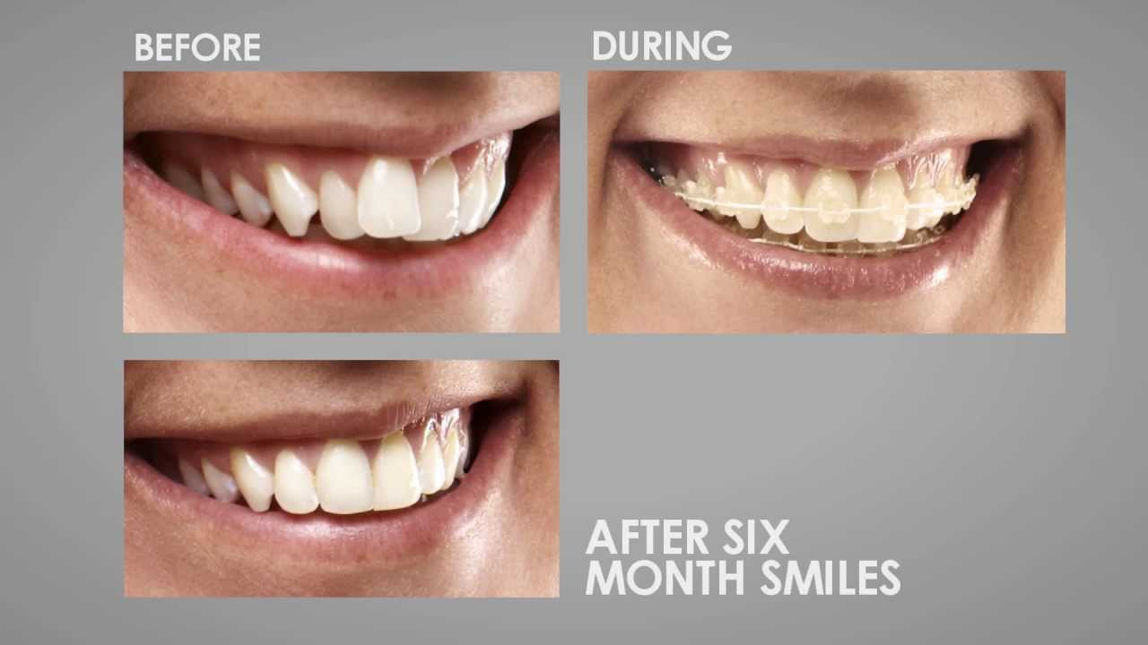 Six Month Smiles in One Minute
