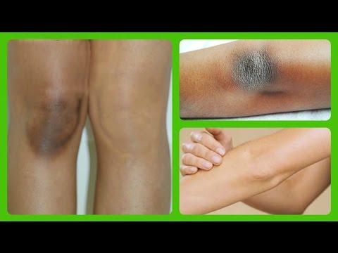 Le psoriasis essliver ou essentsiale le forte
