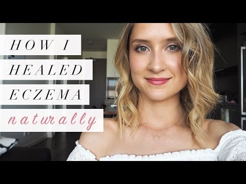 Video How I Healed Eczema Naturally | My Story