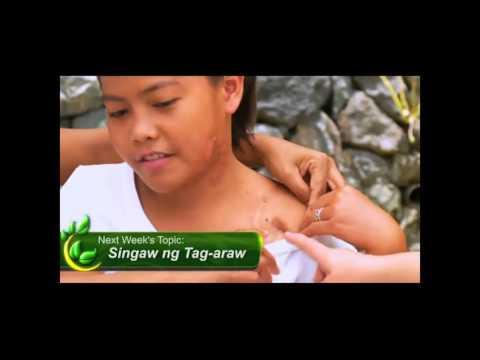 Healing Galing SO4EP01 Diabetes pt3 - Healing Galing
