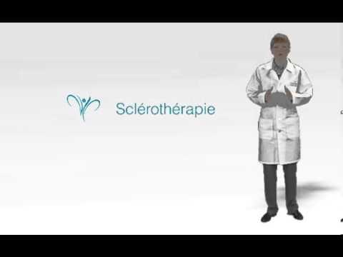 Endovazalnaya loblitération laser la méthode