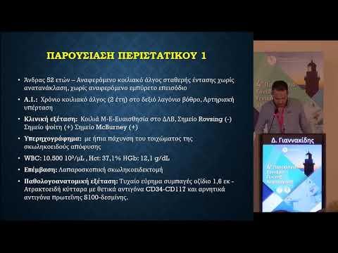 Γιαννακίδης Δ. - Στρωματικοί όγκοι σκωληκοειδούς απόφυσης