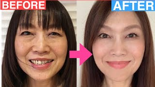 How to Make You Look 10 Years Younger   Change Your Face Naturally