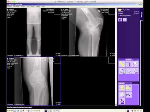 Kniegelenkendoprothetik