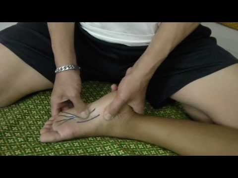 ICD เท้าแบน valgus