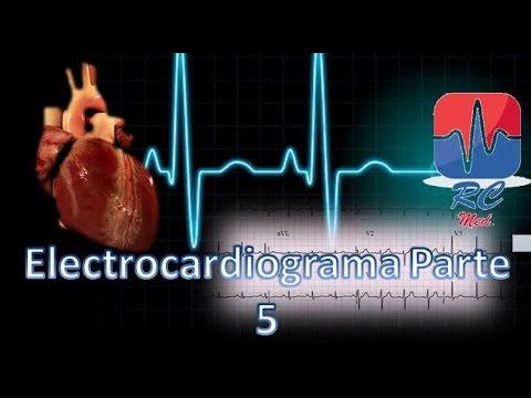 Hace que la presión arterial baja y alta de pulso