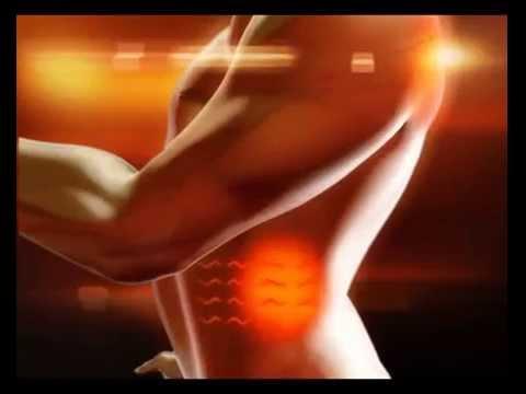 Ernia sequestrati di disco intervertebrale