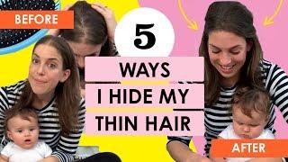 5 Ways I Hide My Thin Hair (Postpartum Hair Loss)