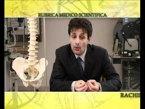Danni al menisco del ginocchio corno posteriore congiunta