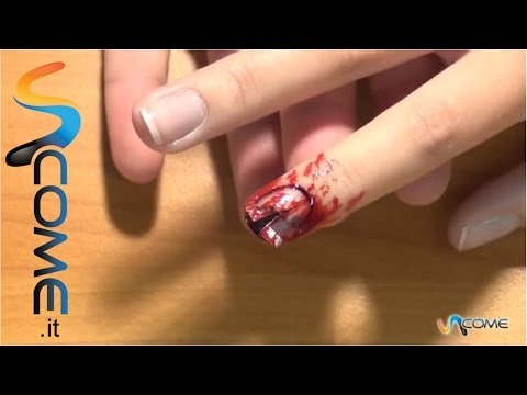 Trattamento di unghie per un fungo rimedi di gente fissi di trattamento