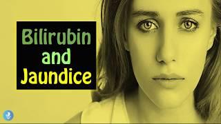 Bilirubin & Jaundice Causes, Symptoms and How to Prevent the YELLOW SKIN disease
