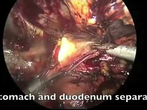 Robotic hepaticojejunostomy