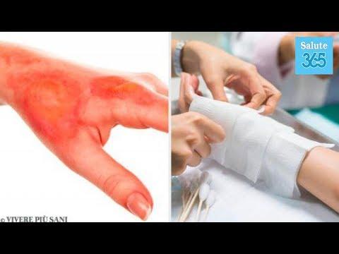 Collagene colpisce le articolazioni
