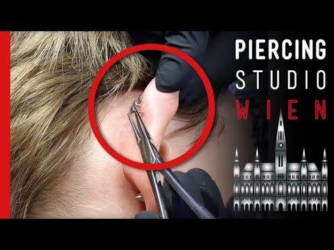 Piercing Fails - RINGEROHR mit 3 eitrigen Flat Conch Piercings - Marc's Piercing TV