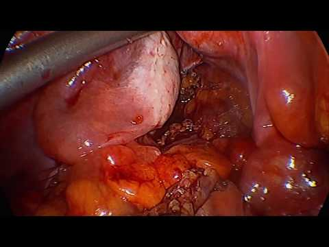 Klippel-Trenaunay Syndrome Sigmoid Resection