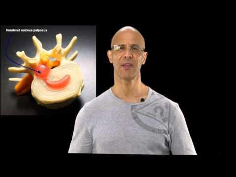 Arthrose Kiefer- zeitlichen Gelenk