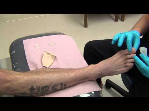 Увеличенная косточка на большом пальце ноги