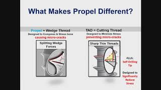 Dental Treatment: Accelerated Orthodontics Aug 21, 2018