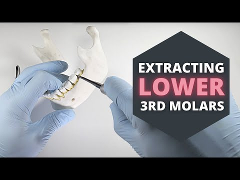 How To Extract Erupted Lower Third Molars