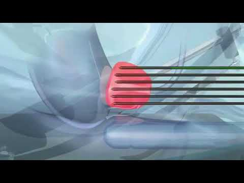 Аденома простаты пальпация как лечение