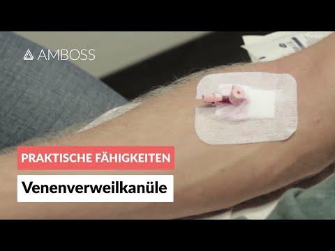 Legen einer Venenverweilkanüle (peripherer venöser Zugang, Viggo, Flexüle, Braunüle) - AMBOSS Video
