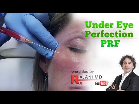 PRF Video