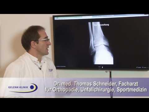 Operation Kreuzband des Kniegelenks Preis