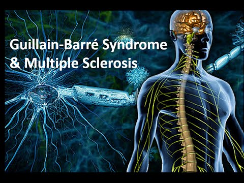 MS & GBS - Part 3 of 3: Guillain-Barré Syndrome
