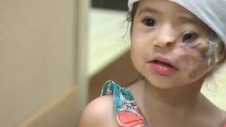 News 12, Toddler born with deformity gets life-changing surgery on LI