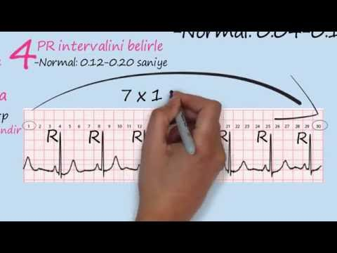 Meloksikam, a krvni tlak