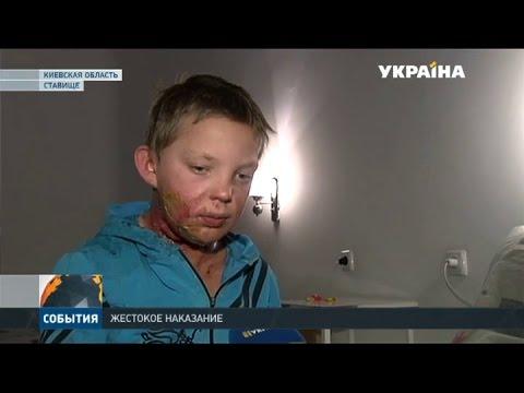 В Киевской области отчим залил пасынку в рот спирт и поджёг