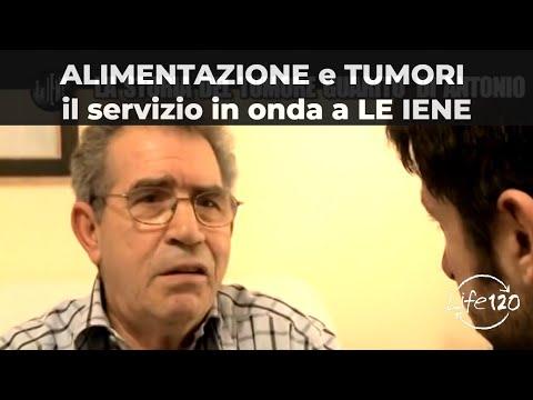 Il cancro alla prostata MTS nellosso