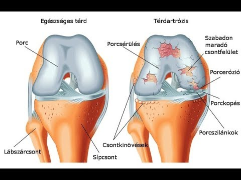 Fejfájás és ízületi fájdalom tünetei