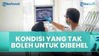 Kondisi yang Tidak Dianjurkan untuk Memasang Behel, Ini Penjelasan dari Dokter Gigi
