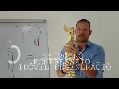 Diclac kenőcső nyaki osteochondrozishoz