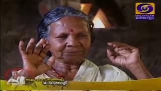 Hair Transplantation │YCDC - Dr  K  Yogiraj Centre for