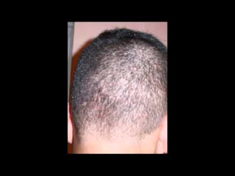 El tratamiento del hongo de las planta de los pies por el vinagre