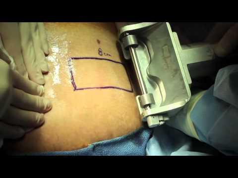 Przeszczep pośredniej grubości skóry
