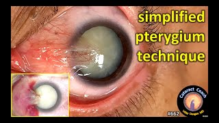 simplified technique for safe pterygium surgery