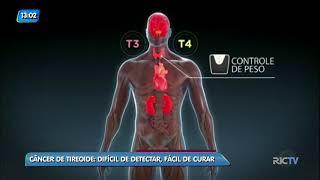 Conversando Sobre Câncer: câncer de tireoide é difícil de detectar, mas é fácil de curar
