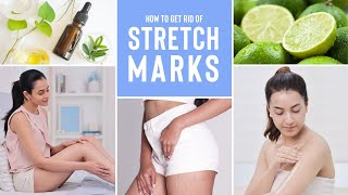 Everything You Need To Know About Stretch Marks & How To Reduce Them Using Natural Ingredients