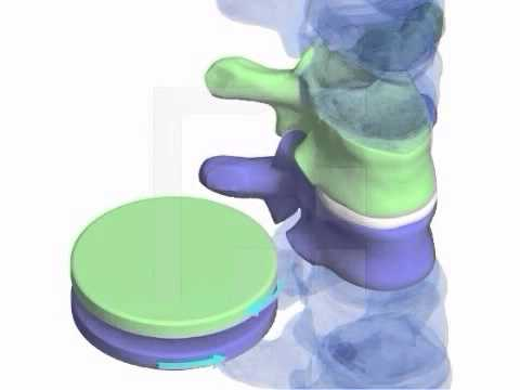 Wie wund Lymphknoten im Nacken