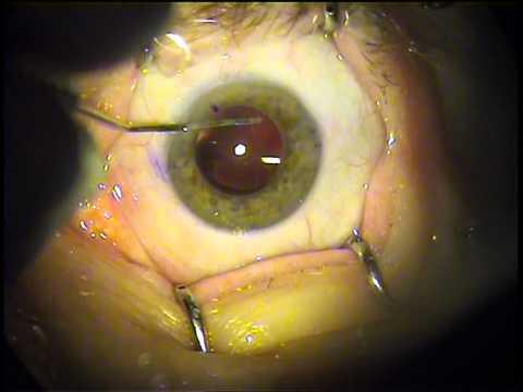 Растет глаз при близорукости