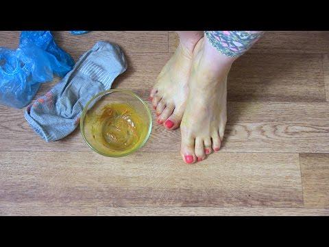 Как вылечить СУХИЕ и ПОТРЕСКАВШИЕСЯ ноги
