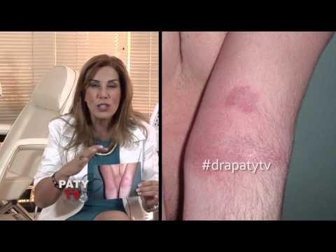 El tratamiento por la fracción de la psoriasis