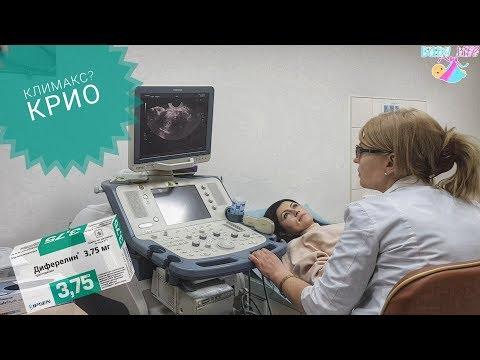 Подготовка к подсадке эмбрионов, искусственный климакс