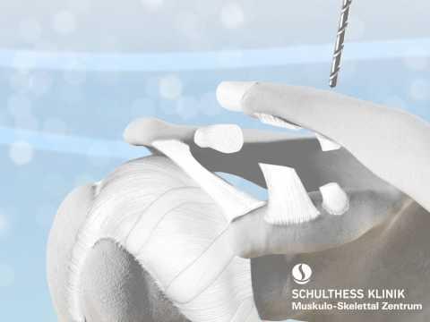 Arthrose des Hüftgelenks der zweiten Grad Behandlung